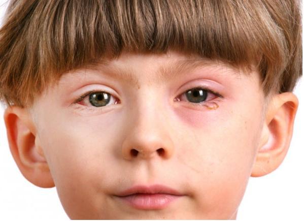 ребенок с красным глазом