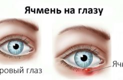 Причины появления ячменя на глазу и как с ним бороться