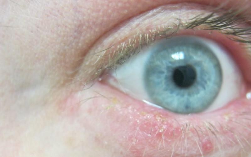 демодекс у глаз