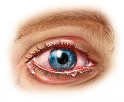 инфекции в глазах
