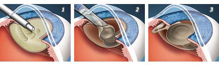 операция над хрусталиком глаза