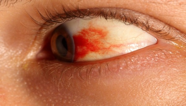 Кровоизлияние в сетчатку.