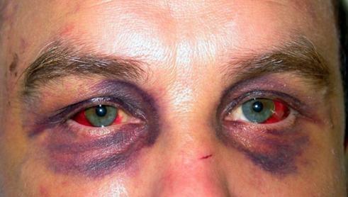 Кровоизлияние в глазницу.
