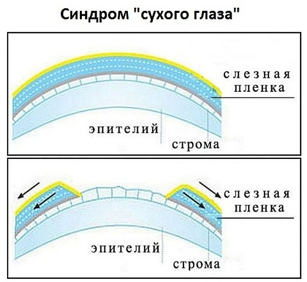 схема синдрома сухого глаза