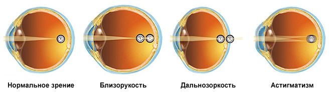 схема дальнозоркости глаза