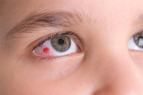 кровоизлияния глаз