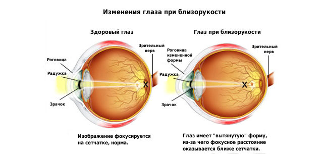 Лазерная коррекция зрения цена в москве при близорукости