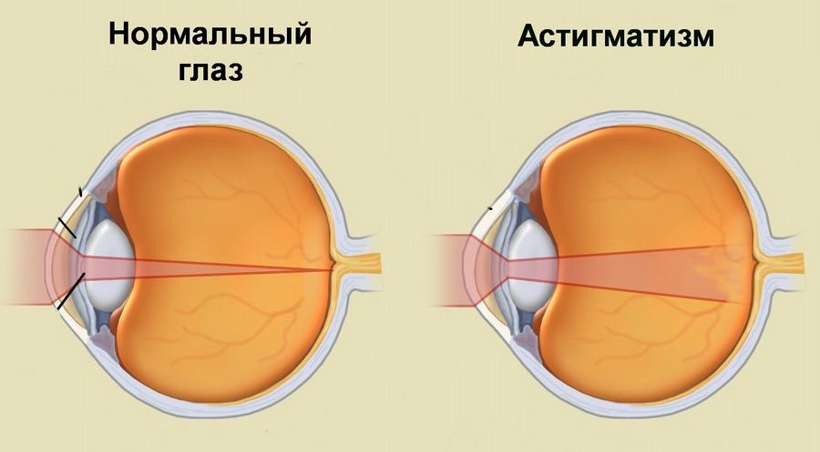 Книга марины ильинской метод восстановления зрения