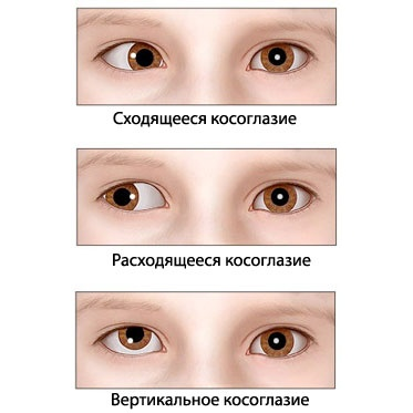 Лазерная коррекция зрения бесплатно в москве