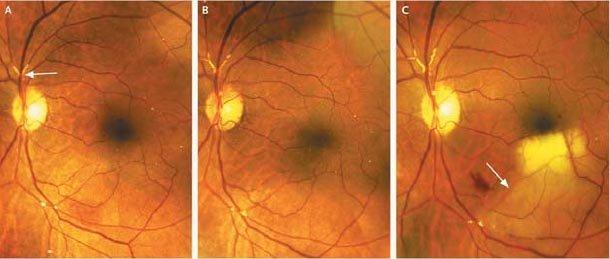 проблемы сетчатки глаза