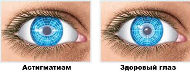 Амблиопия глаза беременность