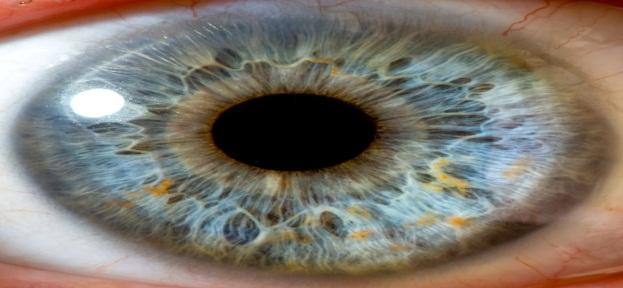 пятно на глазу