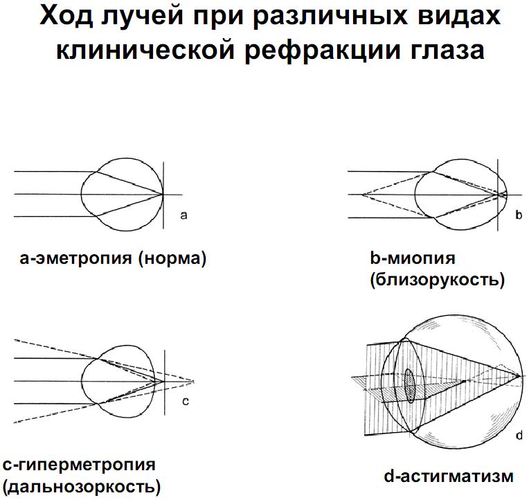 схема скиаскопии глаза
