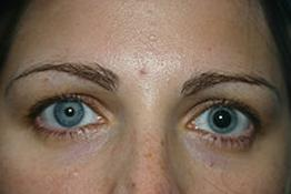разные зрачки глаза