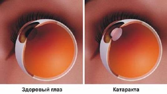 Признаки катаракты глаза