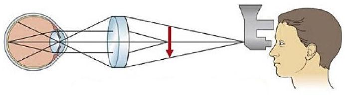 схема осмотра глаза