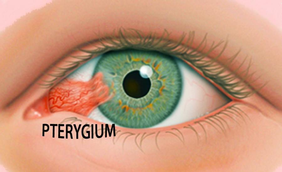 птеригиум глаза
