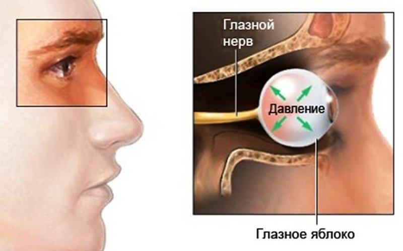 Неврит ретробульбарный