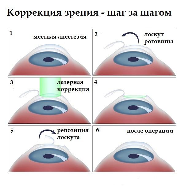 Контактные линзы исправление зрения