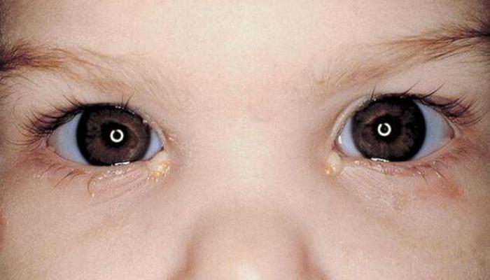 гной на глазах ребенка