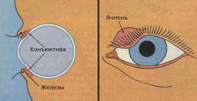 схема ячменя на глазу
