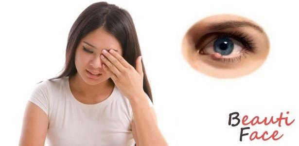 ячмень над глазом