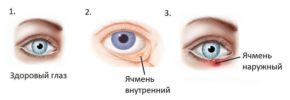 Что нужно делать чтобы прошел ячмень на глазу