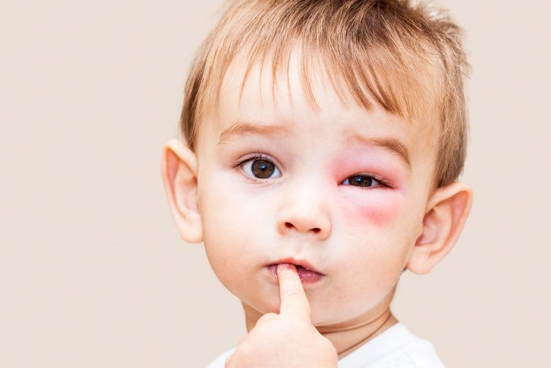 отек под глазом у ребенка