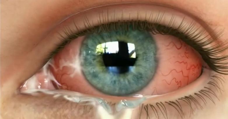Отек глаз при аллергии лечение