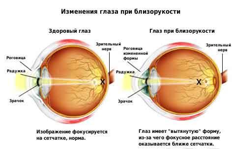 схема глаза при близорукости