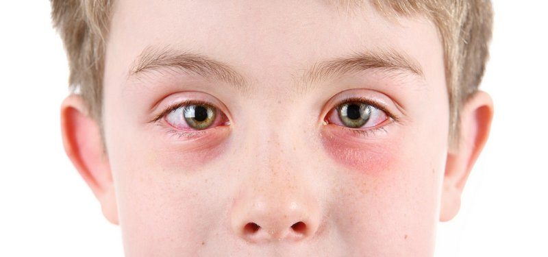 Аллергический кератит