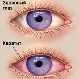 Аденовирусный кератит
