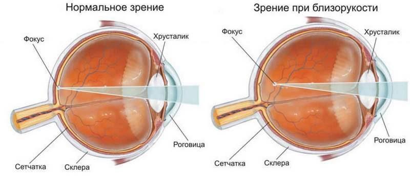 разрез глаза при близорукости