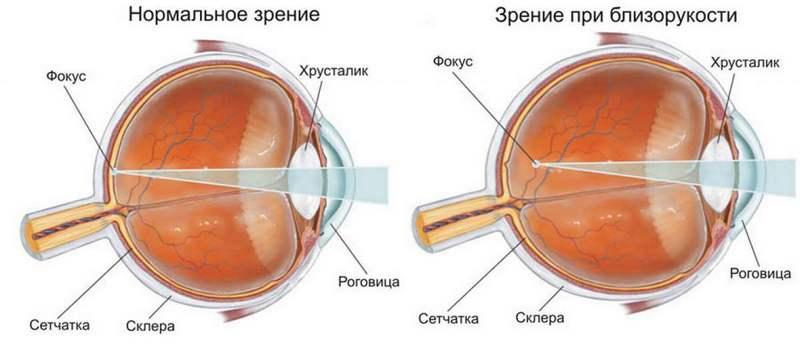 От линз садится зрение