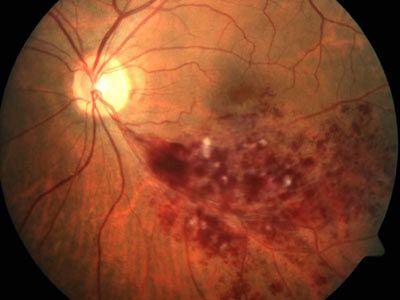 Периферическая хориоретинальная дистрофия сетчатки глаза