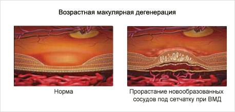 Возрастная дегенерации сетчатки глаза