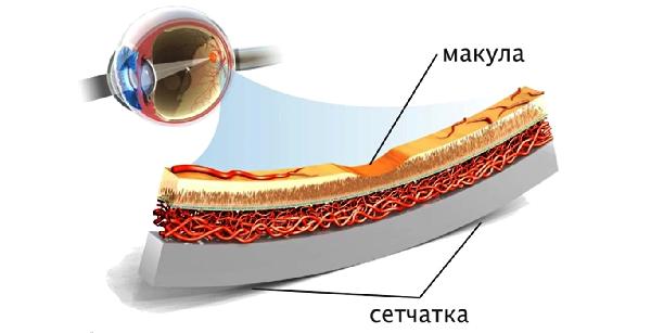 Макулярная дистрофия сетчатки глаза