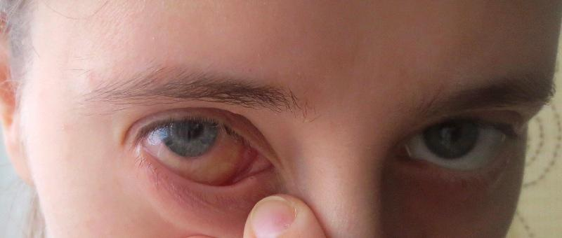 этого, Сабрину глаз покраснел и опух кто даст, опасно