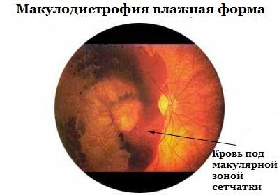 дегенерации сетчатки глаза