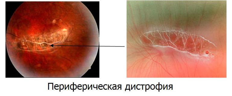 Периферическая дегенерация сетчатки глаза