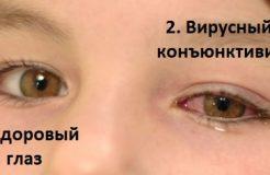 Острый конъюнктивит глаз