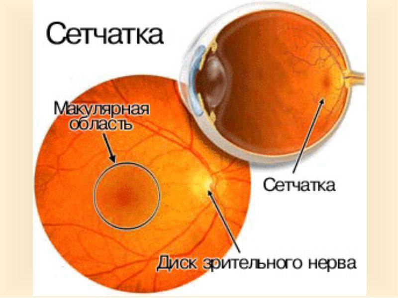 Симптомы макулярной дистрофии сетчатки глаза