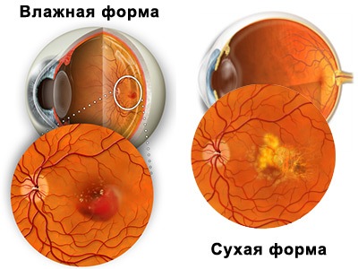 типы макулярной дистрофии сетчатки глаза