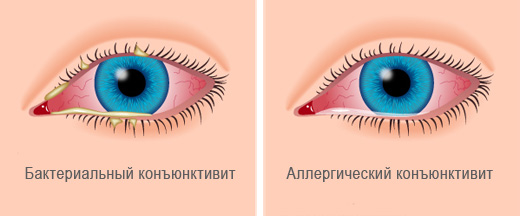Бактериальная форма конъюнктивита глаза