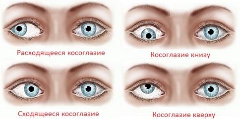 Зрение минус 10 в процентах