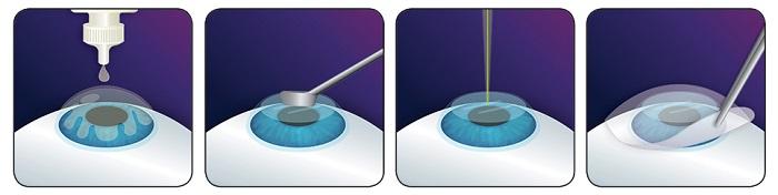 схема лазерная коррекция  зрения