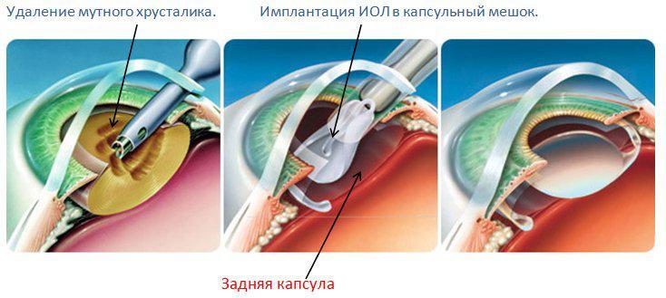 удаление мутного хрусталика глаза