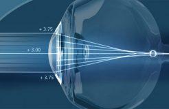 Противопоказания к лазерной коррекции зрения
