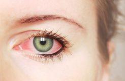 Причины появления кератита глаза и методы его лечения