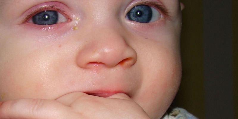 почему ребенок трет глазки рунами,если